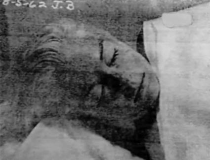 Marilyn monroe autopsy photos – graphic content be warned